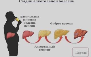 Лучшие препараты для восстановления печени после алкоголя