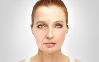 Почему опухает лицо: причины