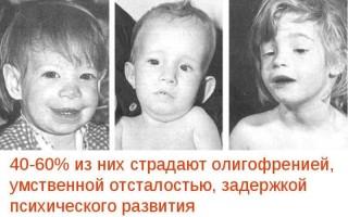Какие дети рождаются у наркоманов