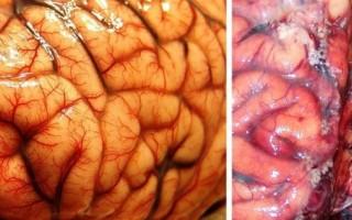 Алкоголик и здоровый человек: фото печени, мозга, сердца