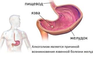 Влияние алкоголя на жкт