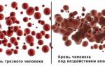 Виды анализов крови на наличие алкоголя (CDT) и расшифровка показателей