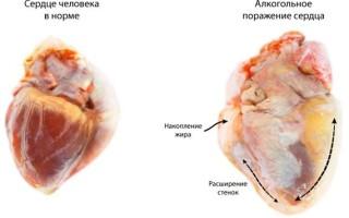 Влияние алкоголя на кровеносную систему человека