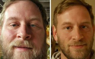 Как меняется внешность после отказа от алкоголя