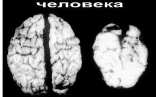 Как алкоголь влияет на мозг алкоголика и здорового человека (с фото)